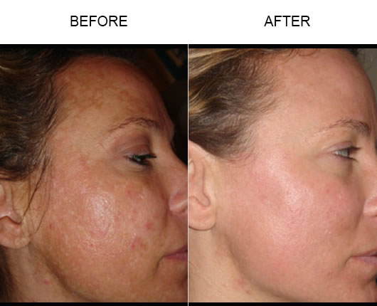 Fraxel Skin Resurfacing Before & After