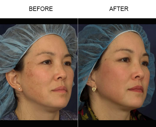 Fraxel Skin Resurfacing Results
