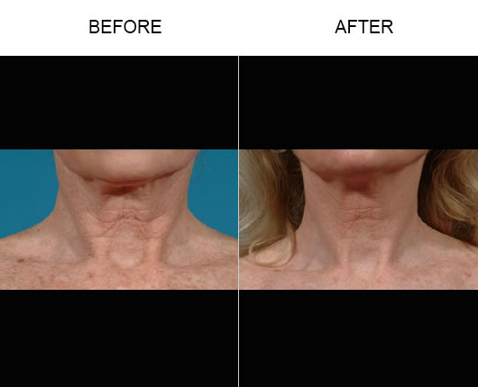 Before And After Fraxel Skin Resurfacing