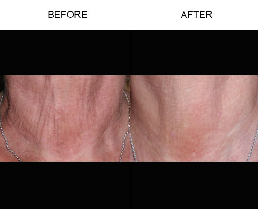 Before & After Fraxel Skin Resurfacing