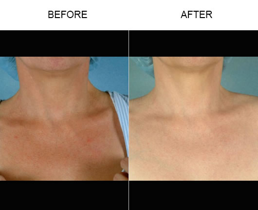 Fraxel Laser Skin Resurfacing Before And After