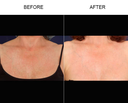 Fraxel Laser Skin Resurfacing Before & After