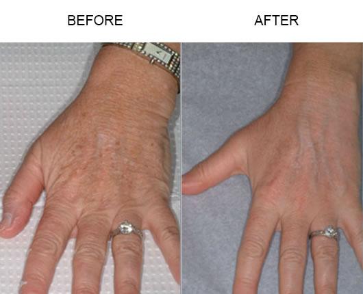 Fraxel Laser Skin Resurfacing Results