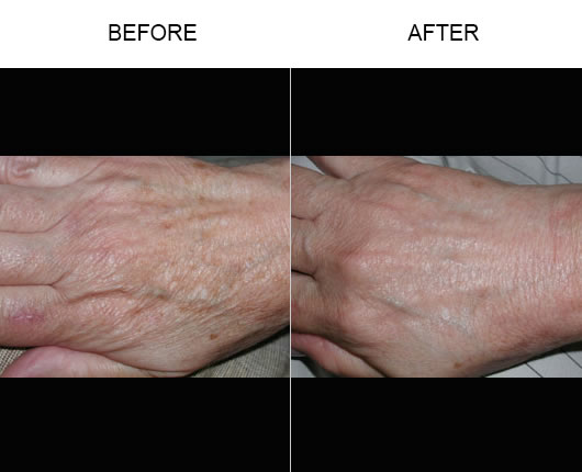 Before And After Fraxel Laser Skin Resurfacing