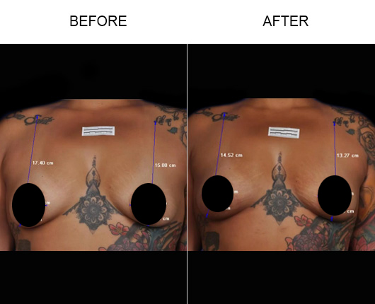 Before And After BreastTite/Thermibreast