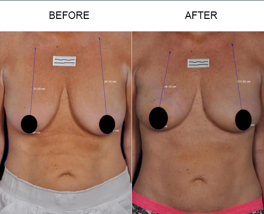 BreastTite/Thermibreast Treatment Before And After