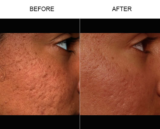 Before & After Fraxel Laser Skin Resurfacing