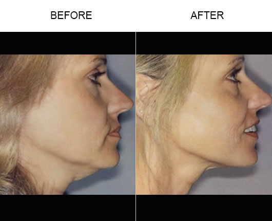 Thermage Facial Treatment Results