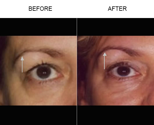 Before And After Thermage Facial Treatment