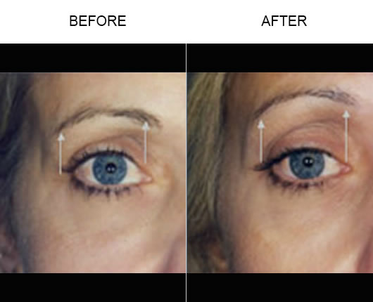 Before & After Thermage Facial Treatment