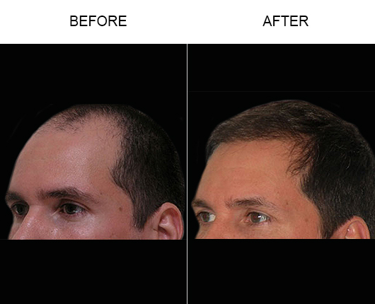 Image Of Hair Loss Treatment Results In Florida