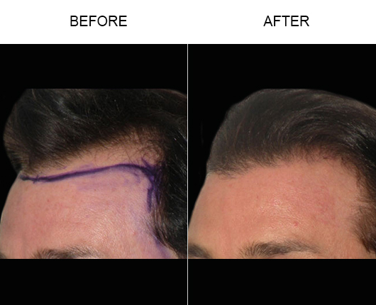 Before And After Image Of Hair Loss Treatment In Florida