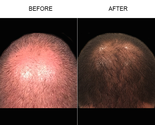 Before & After Image Of Hair Loss Treatment In Florida