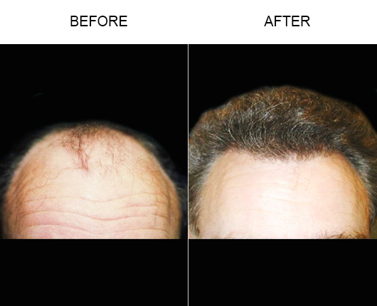 Hair Loss Treatment Before And After Photo