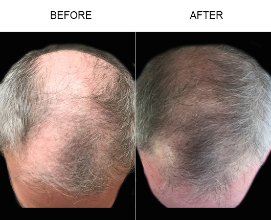 Hair Loss Treatment Before & After Photo
