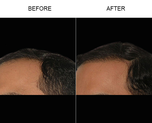 Photo Of Hair Loss Treatment Results