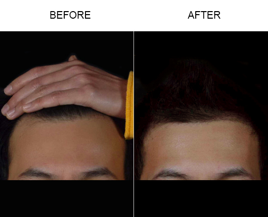Photo Of Hair Loss Treatment Results In Florida