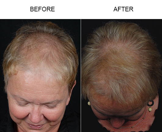 Before And After Photo Of Hair Loss Treatment In Florida