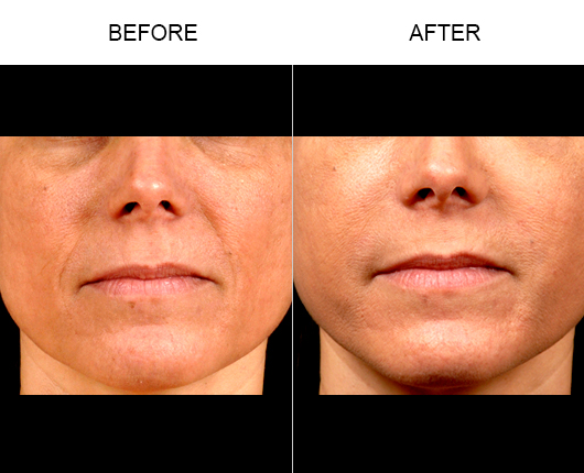 NaturalFill® Facial Filler Before & After