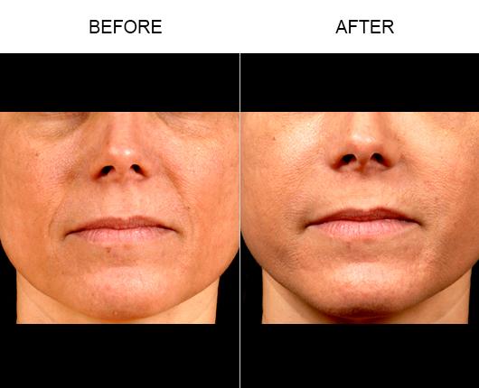 NaturalFill® Facial Filler Before & After