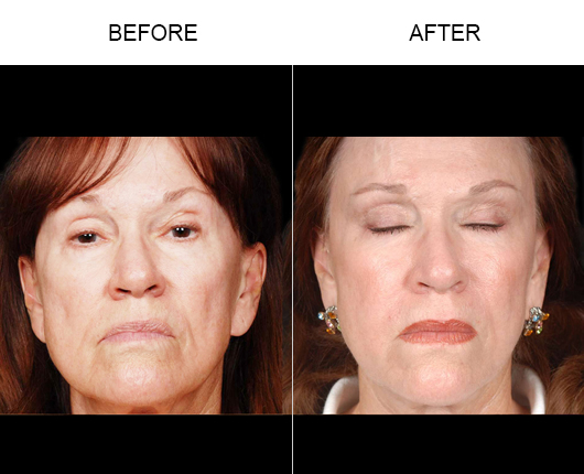 NaturalFill® Facial Filler Results