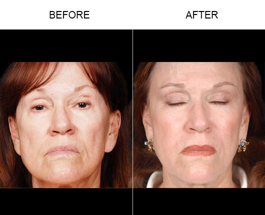 NaturalFill® Facial Filler Results