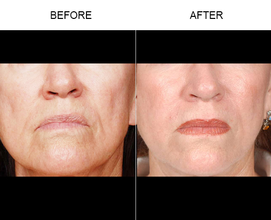 Before And After NaturalFill® Facial Filler