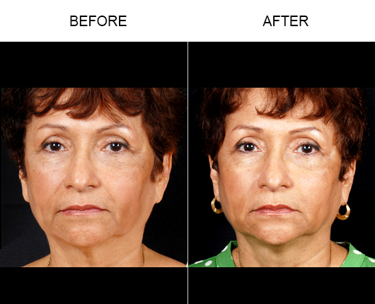 Before & After NaturalFill® Facial Filler