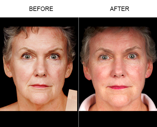 NaturalFill® Facial Filler Treatment Before And After