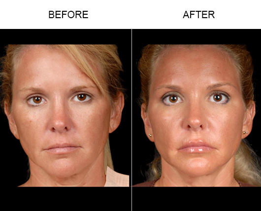 NaturalFill® Facial Filler Treatment Before & After