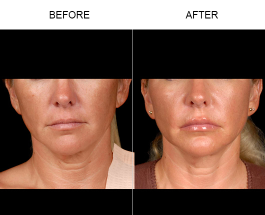NaturalFill® Facial Filler Treatment Results