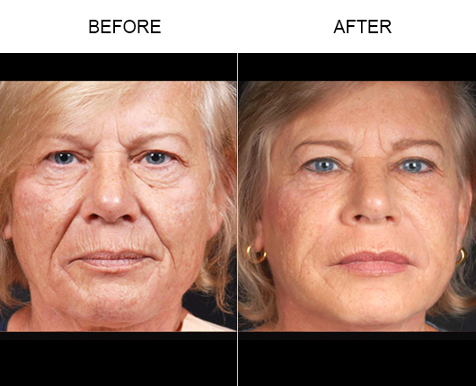 NaturalFill® Facial Rejuvenation Before And After