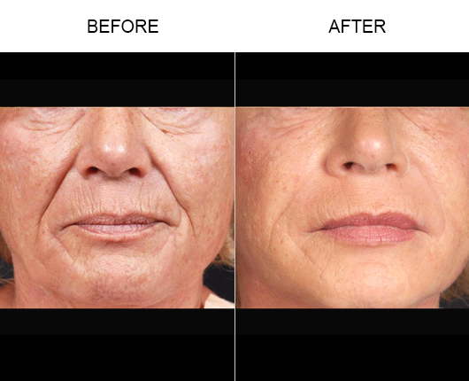 NaturalFill® Facial Rejuvenation Before & After