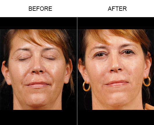NaturalFill® Facial Rejuvenation Treatment