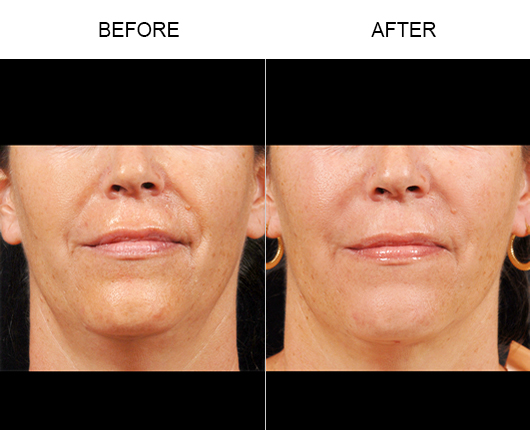 NaturalFill® Facial Rejuvenation Results