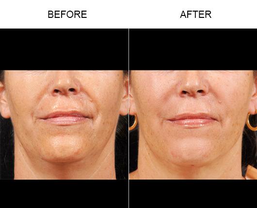 NaturalFill® Facial Rejuvenation Results