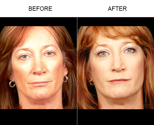NaturalFill® Facial Rejuvenation Treatment Results
