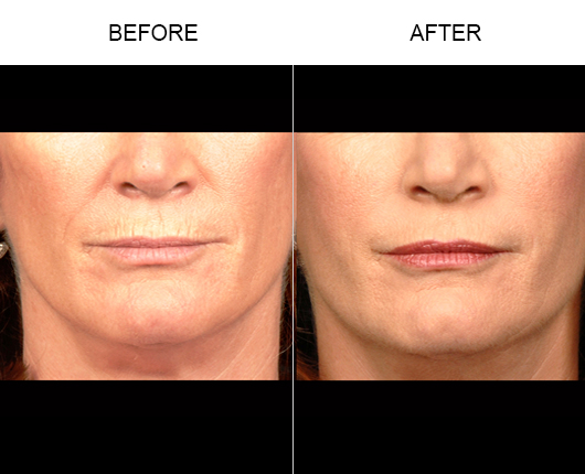 Before And After NaturalFill® Facial Rejuvenation