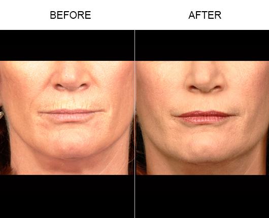 Before And After NaturalFill® Facial Rejuvenation