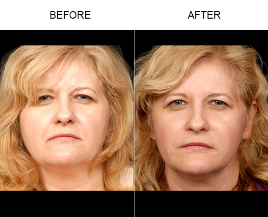Before & After NaturalFill® Facial Rejuvenation