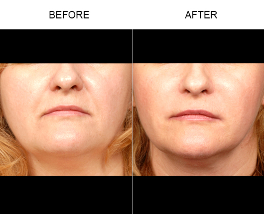 NaturalFill Facial Filler Before And After