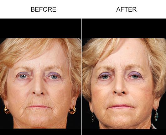 NaturalFill Facial Filler Treatment Before & After