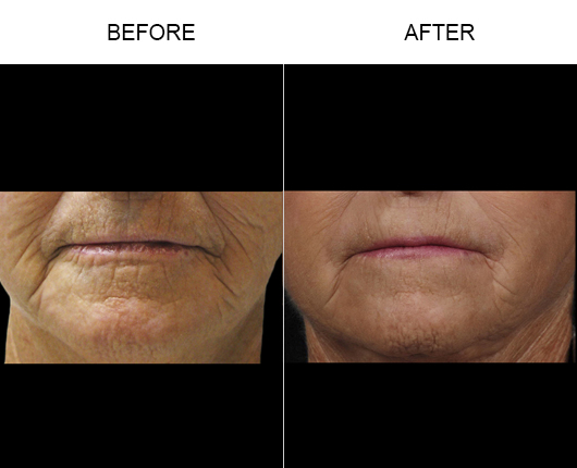 NaturalFill Facial Filler Treatment Results