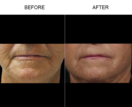 NaturalFill Facial Filler Treatment Results