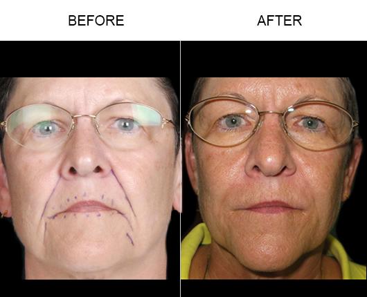 Before & After NaturalFill Facial Filler Treatment