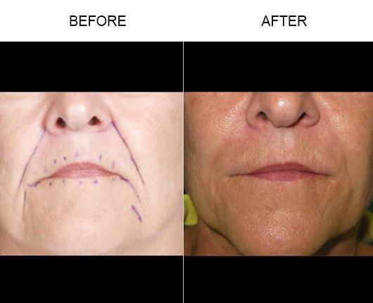 NaturalFill Facial Rejuvenation Before And After