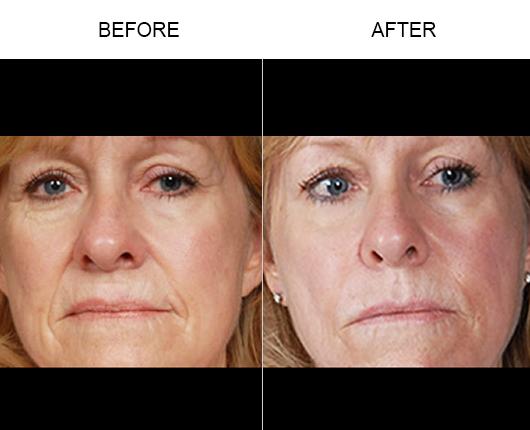 NaturalFill Facial Rejuvenation Before & After
