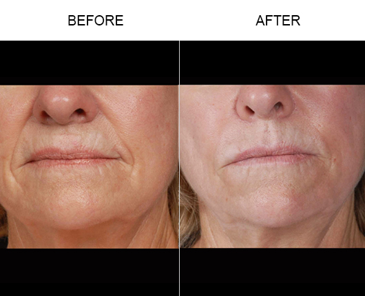 NaturalFill Facial Rejuvenation Treatment