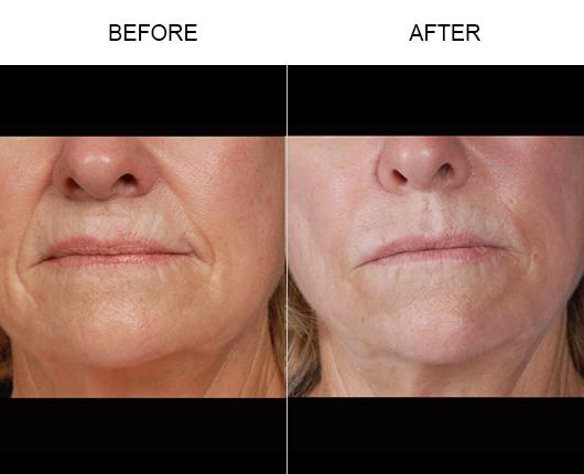 NaturalFill Facial Rejuvenation Treatment