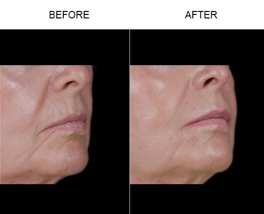 Before & After NaturalFill Facial Rejuvenation